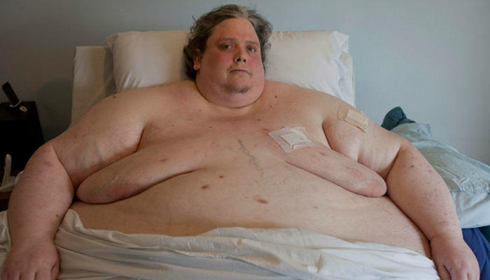 martin fat web thumb Keith Martin The Worlds Fattest Man Dies At 44
