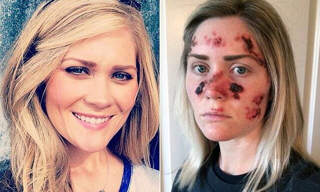 171 Brave Mum Shares Selfie To Show Effects Of Skin Cancer