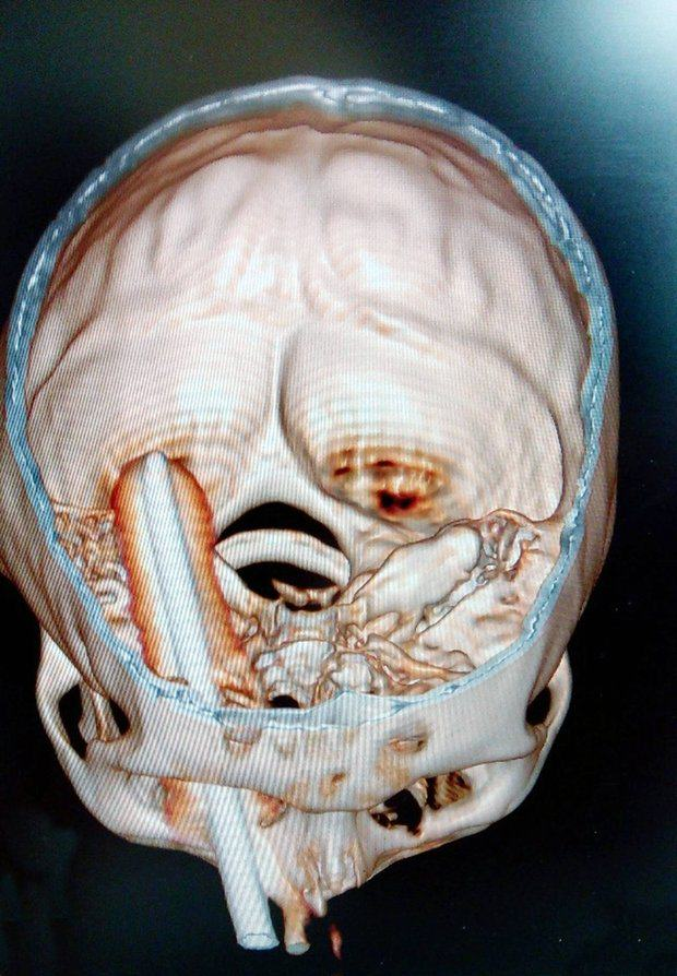 Graphic! This Farmer Nearly Died After Getting A Pitchfork Through His Head 155