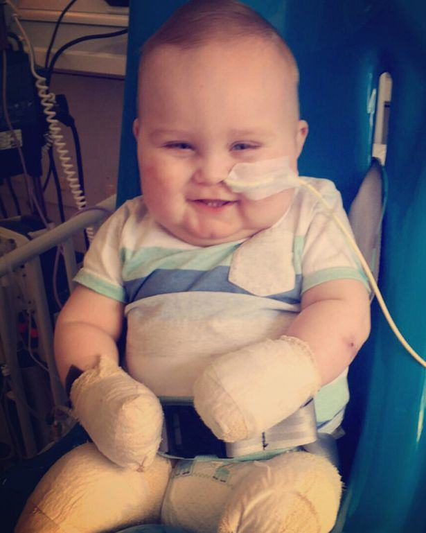 319 This Little Hero Has Survived Meningitis After It Claimed His Leg, Toes And Fingers