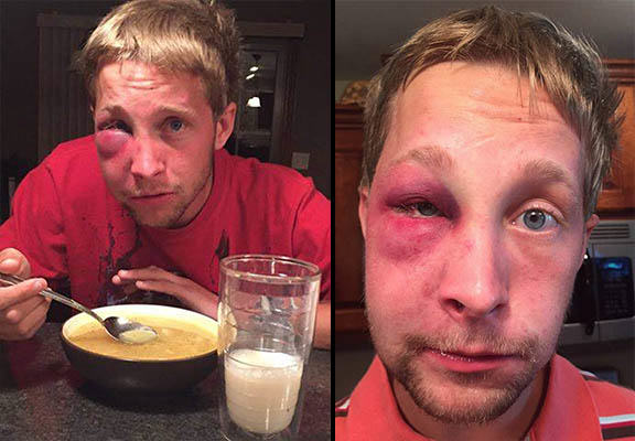 aspergers WEB This Lad With Aspergers Syndrome Reacted Outstandingly After Being Battered
