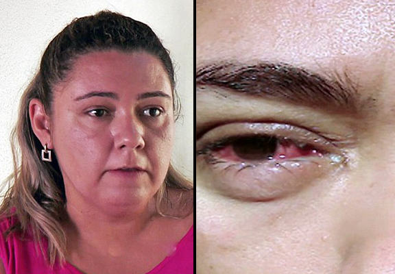 This Woman Cries Crystal Tears Due To Mysterious Condition P3zcfykXe