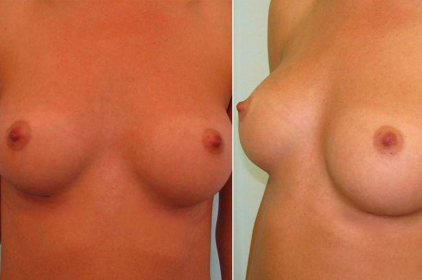 UNILAD Perfect Boobs4 Science Has Discovered What The Perfect Pair Of Boobs Look Like, Apparently
