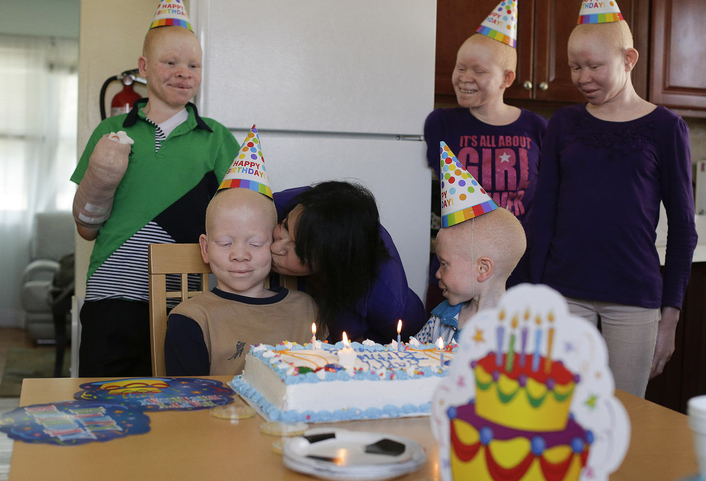 UNILAD albino3 Hunted Albino Kids From Tanzania Find Happy New Life In New York