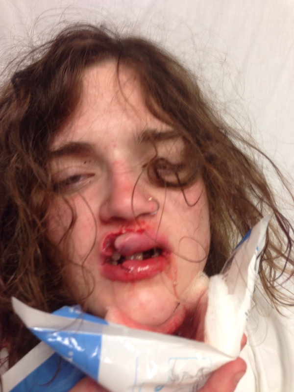 VsXnT0x1Ojess byrnes 2.jpg Graphic Image Of Teen Surfaces After Being Attacked By Catcallers