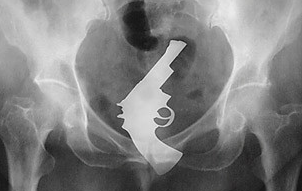 UNILADs Collection Of Peculiar X Rays Demonstrates How Stupid People Can Be When Horny image
