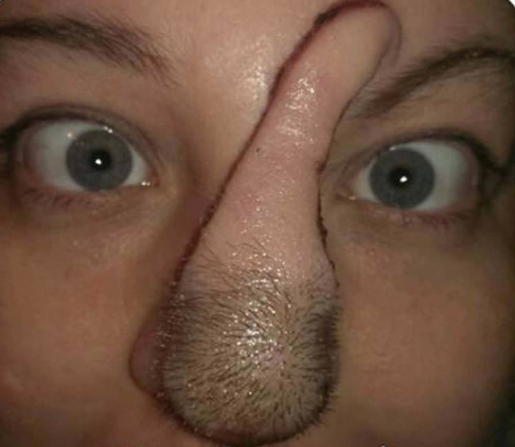 UNILAD ad 183097659 mercury5 Woman With Skin Cancer Given New Nose Using Flesh From Her Scalp