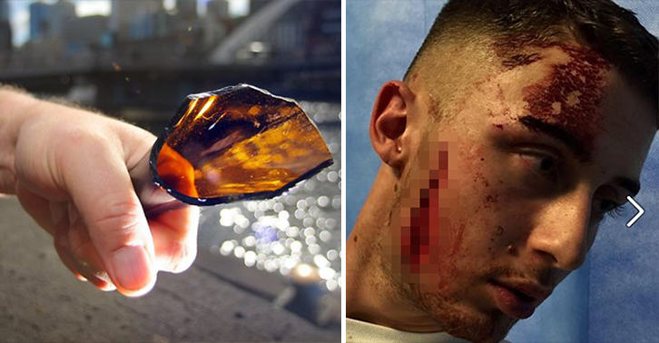 UNILAD bottle injury 4422190488 Young Clubber Suffers Horrific Facial Wound After Being Bottled