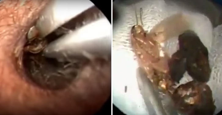 NOPE: Huge Winged Insect Pulled From Bed Of Wax In Patients Ear UNILAD huge insect ear 513634884