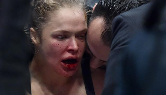 Ronda Rousey Hides Her Face After Having Plastic Surgery Following Defeat UNILAD rousey350606 640x366