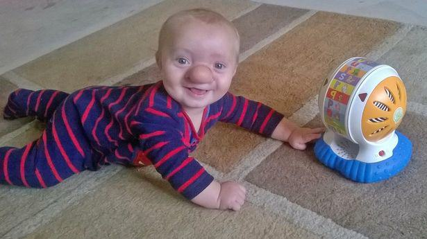 PAY Ollie Trezise 2 Toddler Born With His Brain Growing Into His Nose