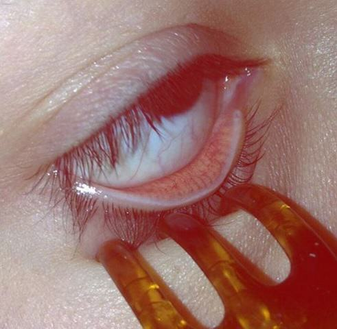 eye 2 NOPE: Terrifying Instagram Account Dedicated To Putting Stuff In Your Eye