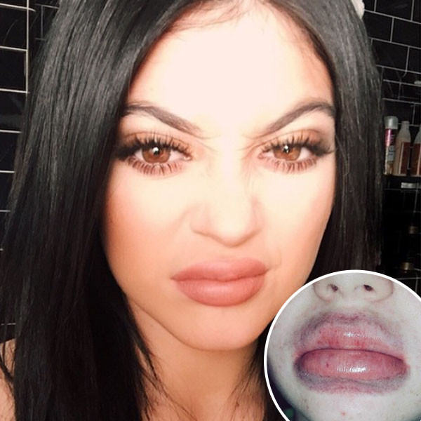 kylie lips Five Times The Kardashians Outdid Even Themselves This Year
