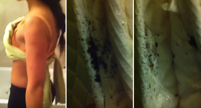 NOPE: Guy Films Nightmare Bed Bug Infestation At New York Hotel FaceThumb 13