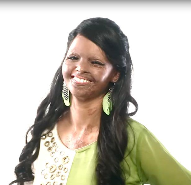 viva2 An Acid Attack Victim Has Now Become The Face Of A Fashion Brand