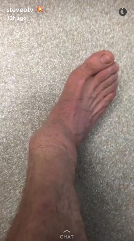 af70444457c4118c136a61a45ae81f5c Steve O Shares Horrendous NOPE Photos Of Broken Legs