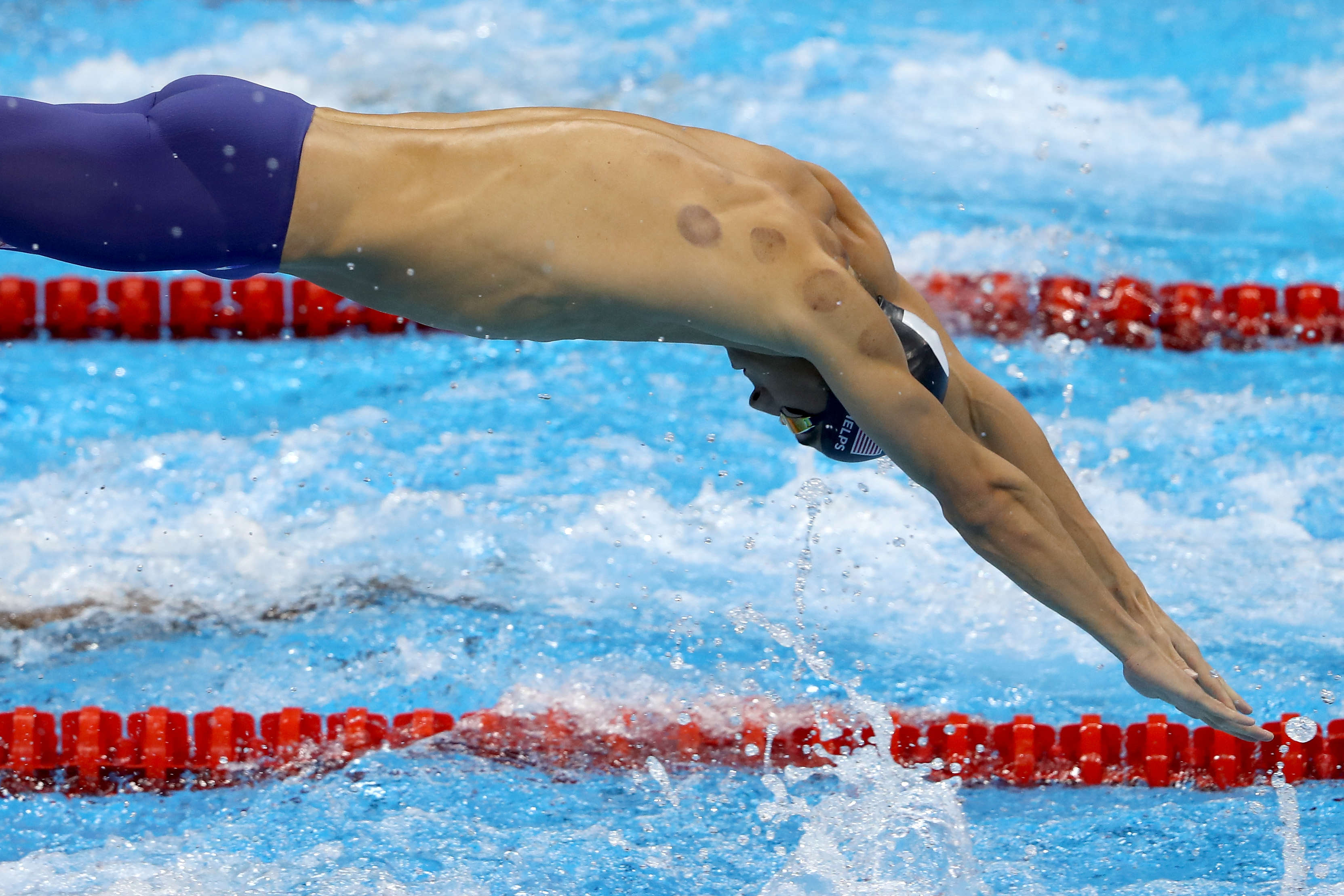 YouTuber Finds Out What Its Actually Like To Get Olympic Cupping Treatment phelps2 1