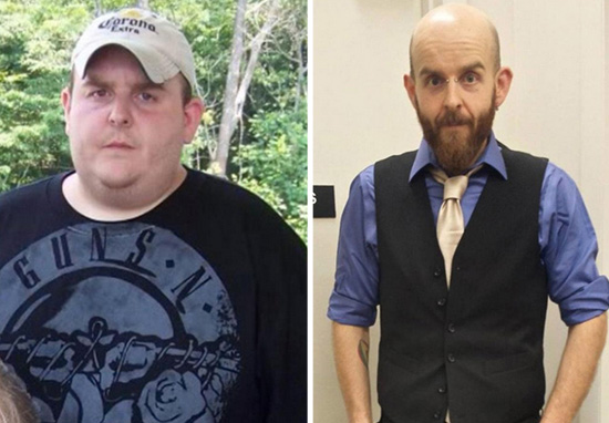 skin4 Man Makes Incredible Transformation But Keeps Excess Skin For Inspirational Reason
