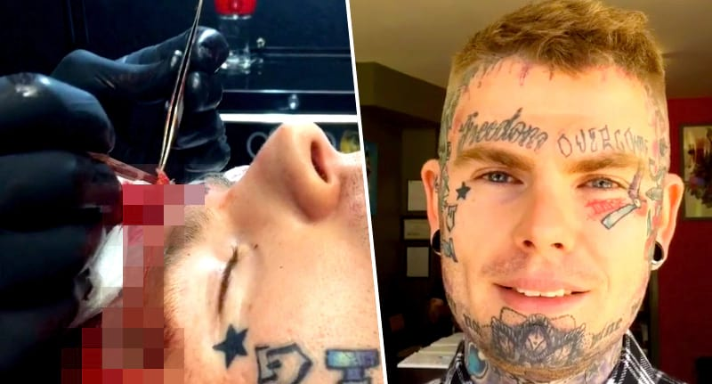 Man gets whole forehead cut off in brutal face tattoo removal for Getting a tattoo removed