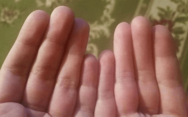 Can You Spot Whats Wrong With This Guys Hands? 33085UNILAD imageoptim 800x400 Finger 2 640x400