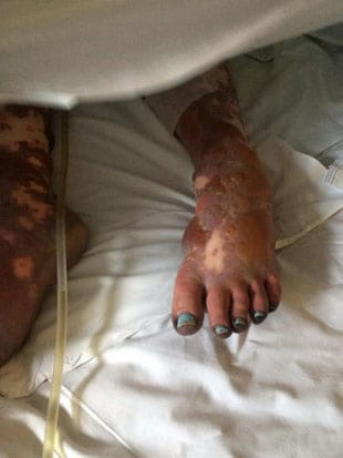Woman With Meningitis Shares Shocking Images Of Her Body To Warn Others 58462UNILAD imageoptim 665520