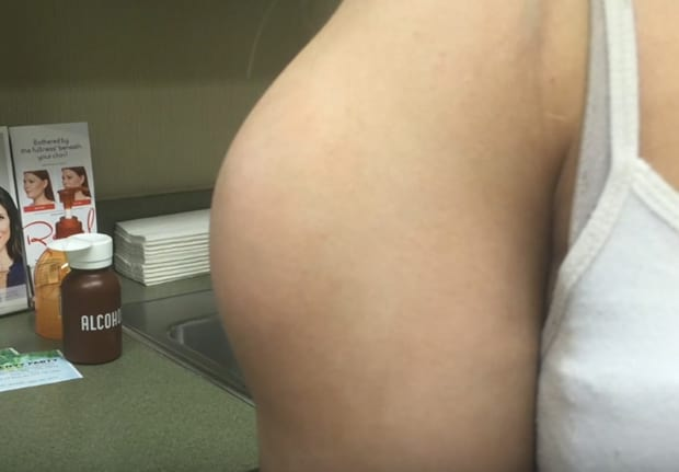 Dr. Pimple Popper Makes Her Biggest Pop Yet