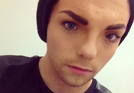 Transgender Woman Spends $45000 On Gruesome Facial Feminisation Surgery