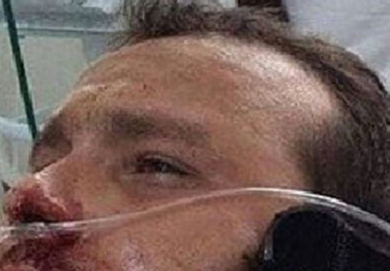 Man Spears Himself Through Head In Horrendous NOPE Fishing Accident