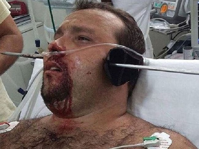 Man Spears Himself Through Head In Horrendous NOPE Fishing Accident %name