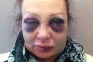Domestic Abuse Victim Shares Shocking Daily Selfies To Document Recovery